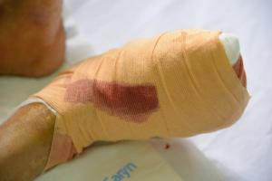 Hơn 3,5 triệu người Việt đang sống chung với bệnh tiểu đường