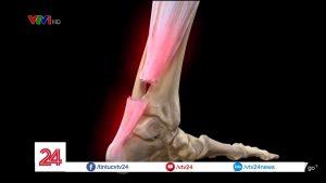 Phục hồi khả năng đi lại cho người bệnh đứt gân gót chân Asin bằng phương pháp Hút áp lực âm (VAC therapy)
